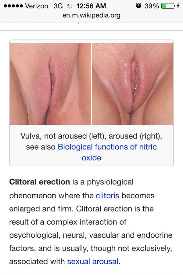 Photos of the erect clitoris