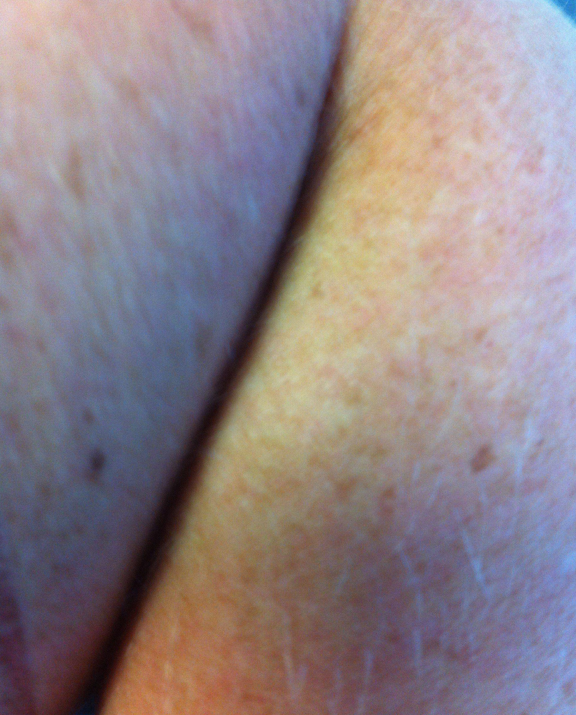 best of Hole Hairy bum