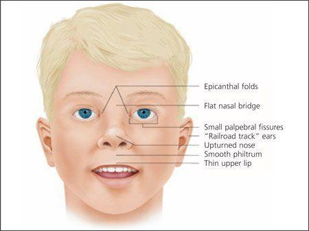True N. reccomend Alcoholism facial deformity