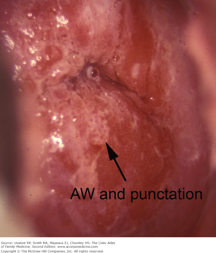 Mosiac punctations on vaginal exam for vulvar dysplasia