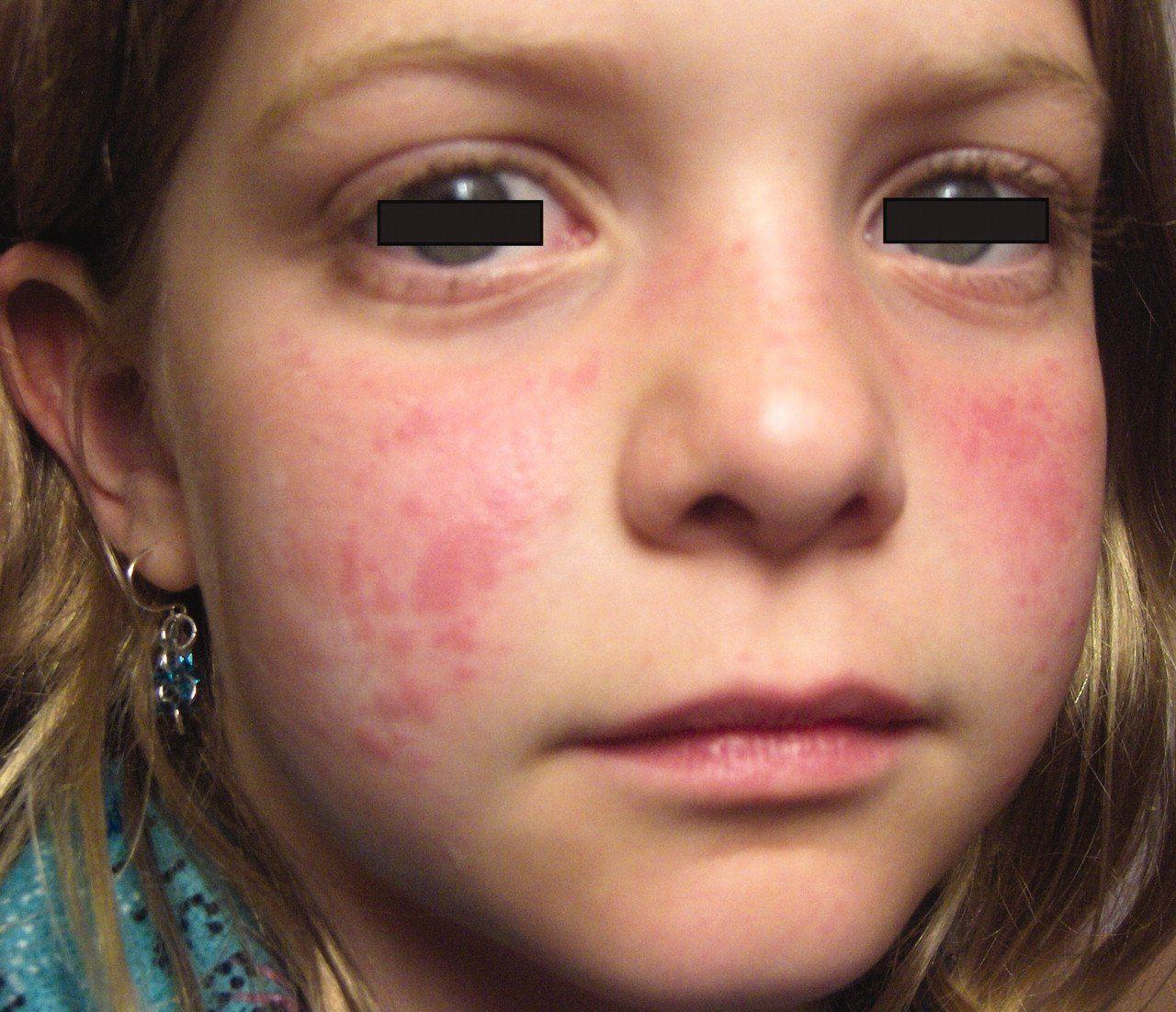 Spider reccomend Facial rashes due to rheumatoid arthritis