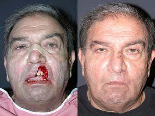 Facial reconstructive surgery
