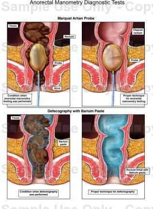 Anal and rectal anometry photo 894