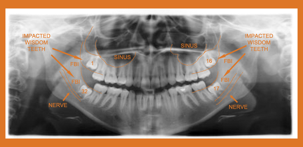 Complications tooth sinus penetration
