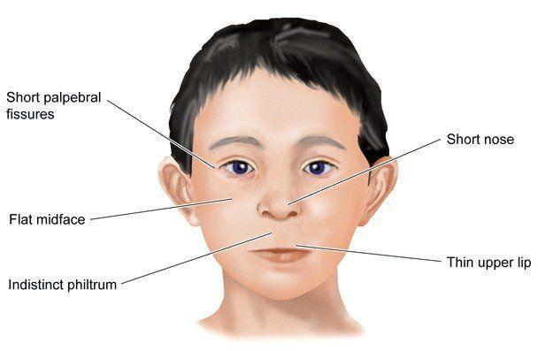 Hammer reccomend Alcoholism facial deformity