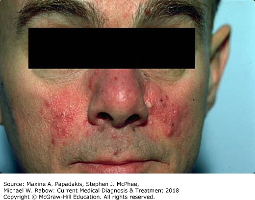 best of Severe anaphylaxis rash 2018 Gallery Infant facial Naked