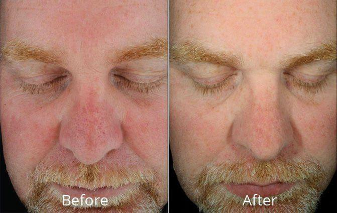 best of Rejuvenation virginia Facial west