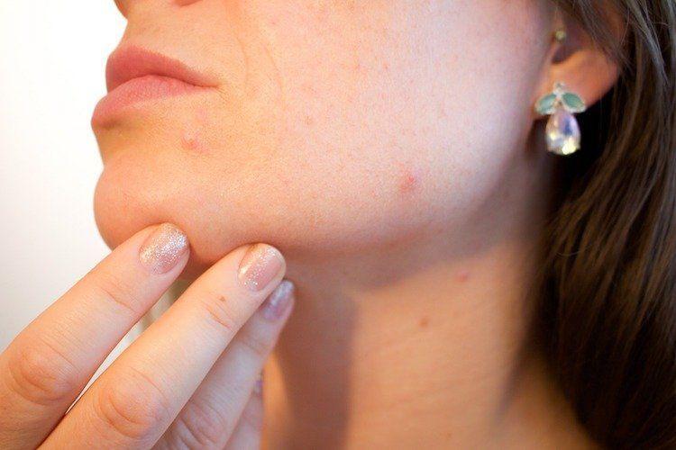 NFL reccomend Facial itch breakout