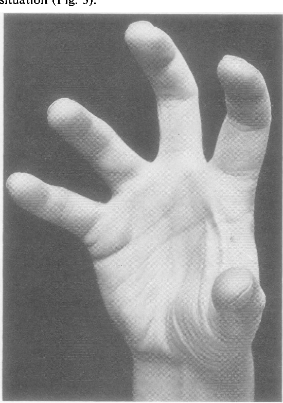 best of Position Cortical thumb