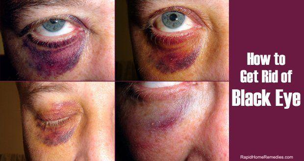 Belt reccomend Violent vomiting leading to facial brusing