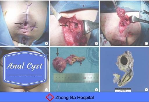 best of In anus Cysts