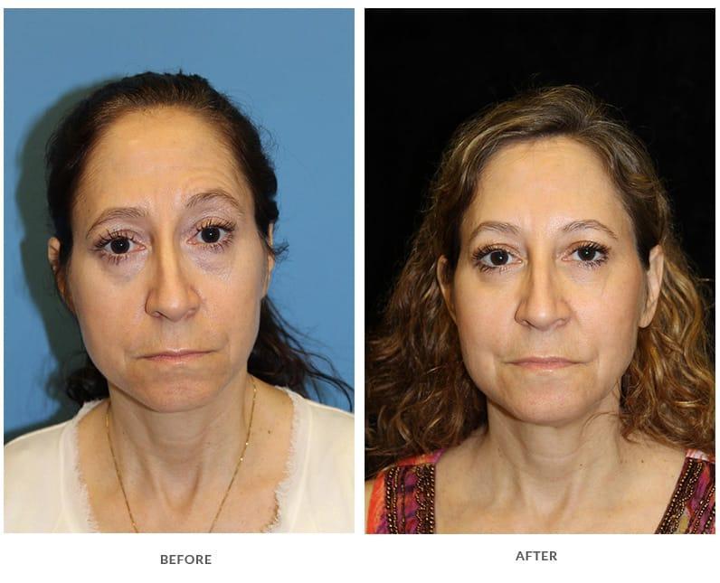 Copycat reccomend Phoenix facial line reduction