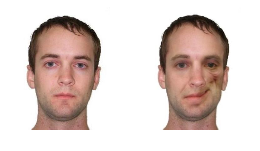best of Disfigurement photos Facial