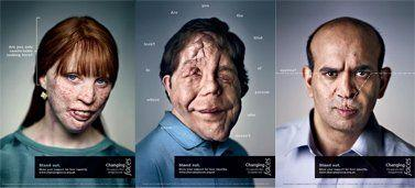 Split /. S. reccomend Facial disfigurement photos