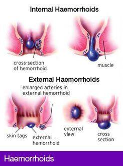 Hemeroids and anal leakage