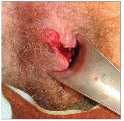 Around anus cyst