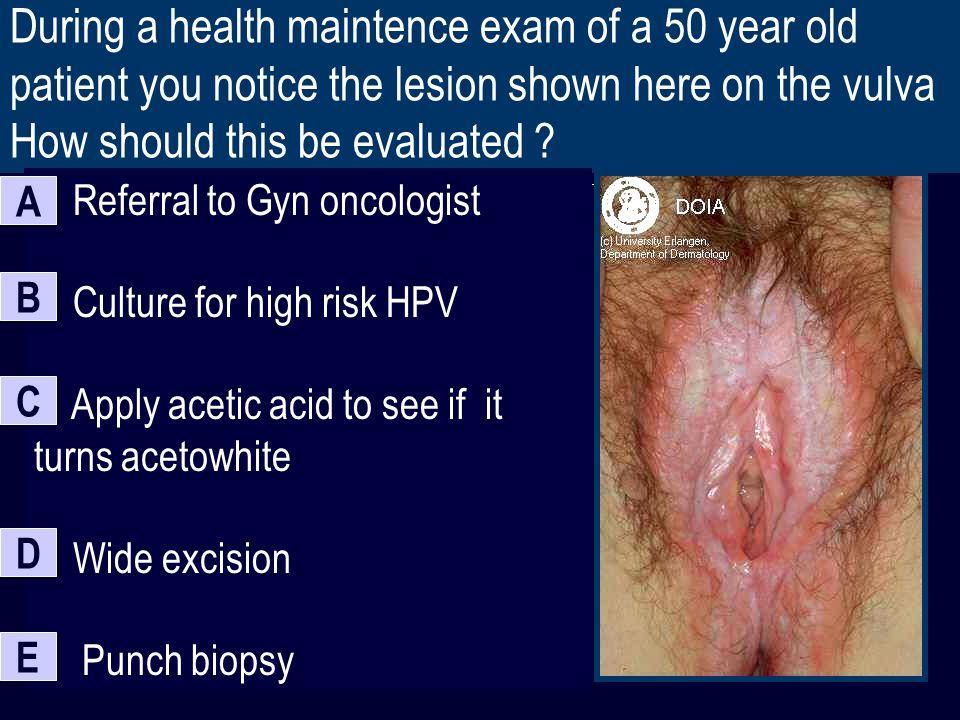 Pop R. reccomend Mosiac punctations on vaginal exam for vulvar dysplasia